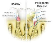 Introduction to Periodontal Disease
